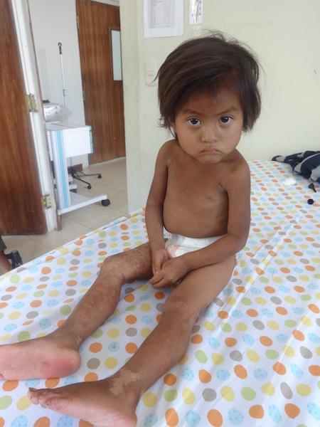 Operation Baby Rescue Guatemala