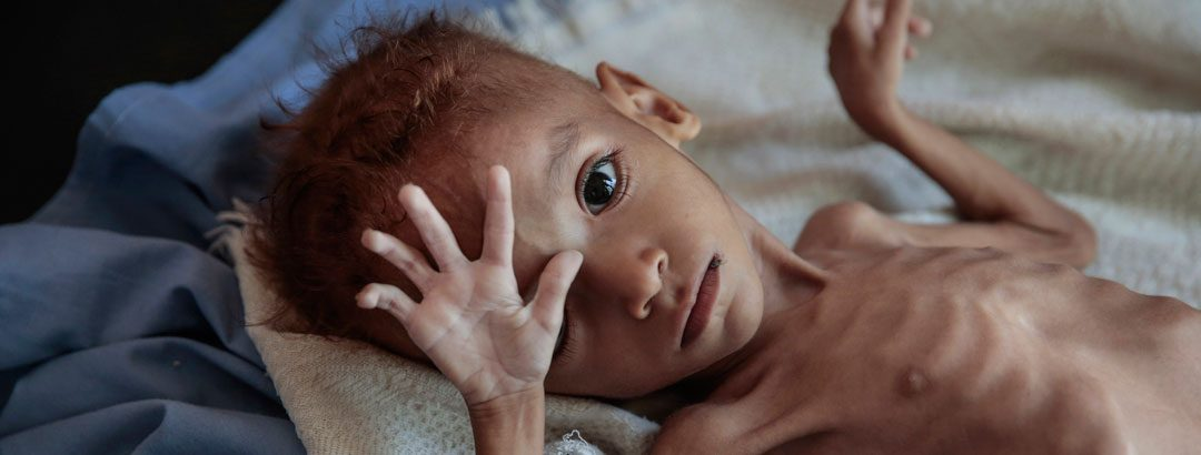 In war-ravaged Yemen, your help is vital!