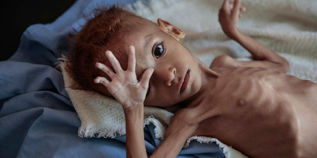 Help starving families in Yemen